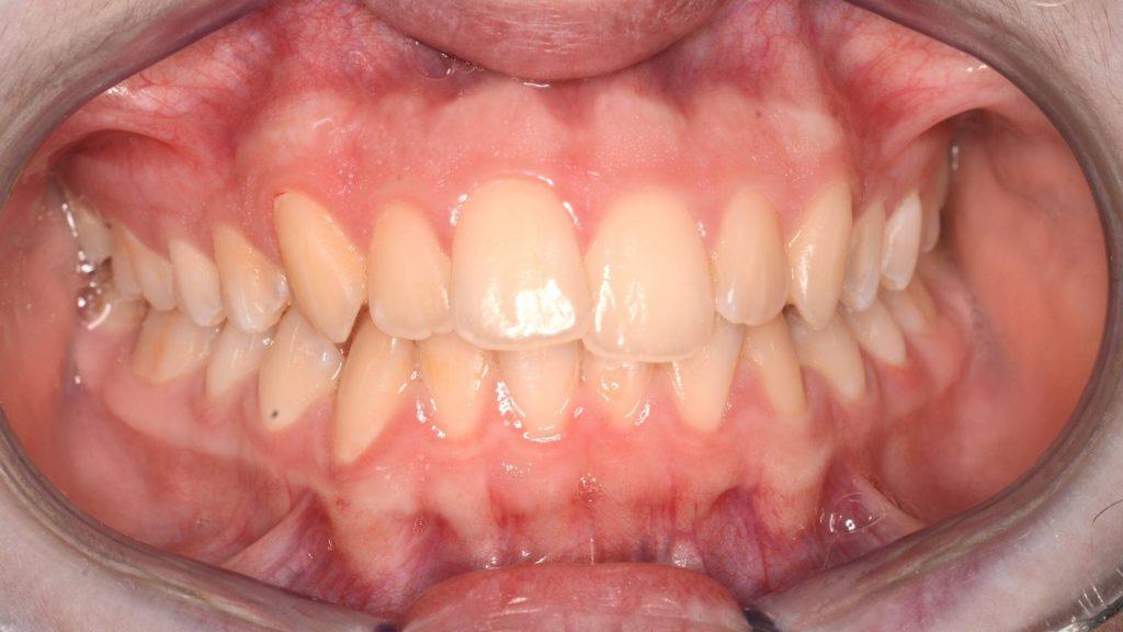 Allineatori trasparenti e ortodonzia invisibile